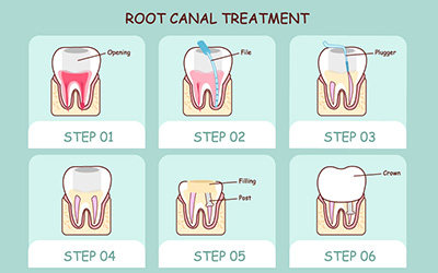 Dealing With Broken Or Lost Dental Crowns