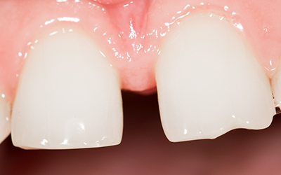What to Know About Interproximal Cavities