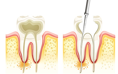 Myths About a Root Canal Procedure