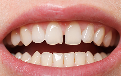 What You Should Know About Gapped Teeth